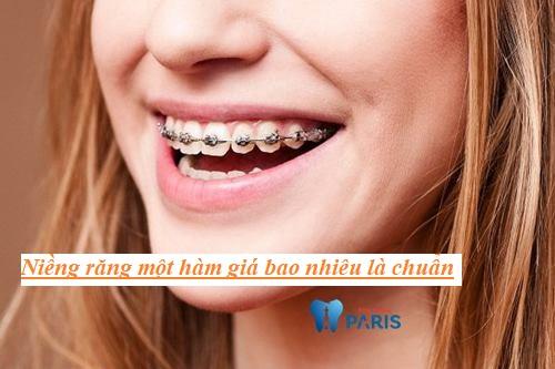 Niềng răng 1 hàm giá bao nhiêu tiền? [Bảng Giá Chuẩn 2018] 6