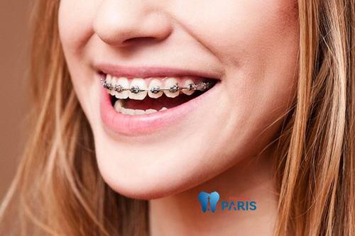 Giải đáp: Niềng răng 1 hàm giá bao nhiêu phụ thuộc vào YẾU TỐ nào? 1