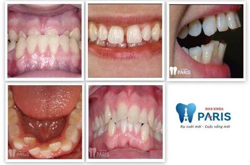Niềng răng 1 hàm giá bao nhiêu tiền? [Bảng Giá Chuẩn 2018] 5