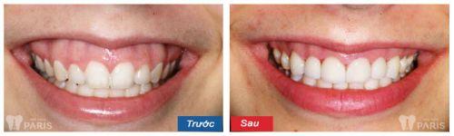 Phẫu thuật cười hở lợi bao nhiêu tiền hợp lý và chuẩn xác nhất? 4