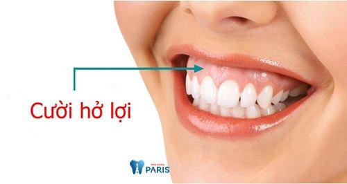 Phẫu thuật cười hở lợi bao nhiêu tiền, quy trình thực hiện như thế nào? 1