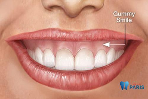 Phẫu thuật cười hở lợi bao nhiêu tiền, quy trình thực hiện như thế nào? 2