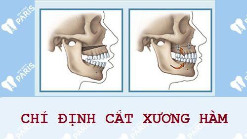 Nguyên nhân & Cách chữa cười hở lợi cùng 6 chỉ định y khoa 7