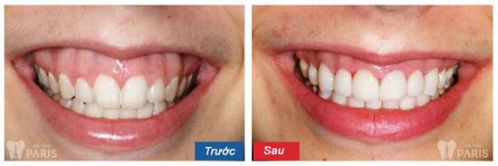 Nguyên nhân & Cách chữa cười hở lợi cùng 6 chỉ định y khoa 2
