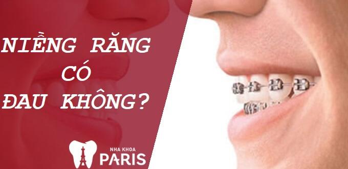 Đeo niềng răng có đau không? Mẹo giảm đau khi niềng răng hiệu quả 1