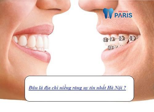 [Gợi ý] Tìm kiếm địa chỉ niềng răng uy tín chất lượng tại Hà Nội? 7