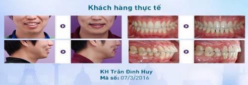 Niềng răng giá bao nhiêu tiền22