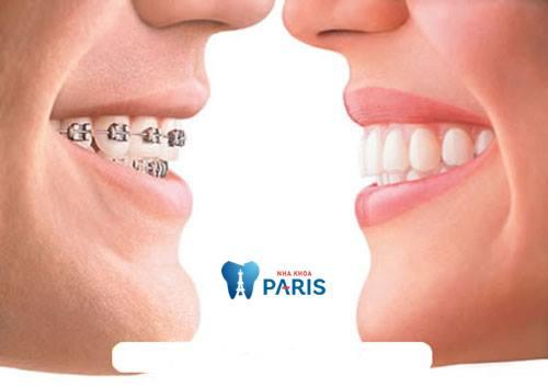 Một số tác dụng niềng răng là gì