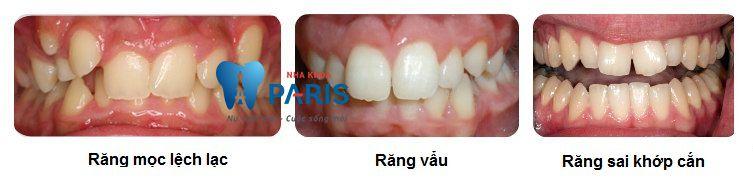 Niềng răng không mắc cài eCligner bí mật nụ cười chuẩn ❛SAO❜ 2