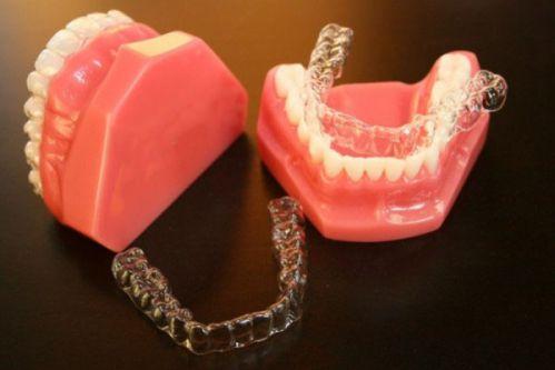 Niềng răng không mắc cài eCligner bí mật nụ cười chuẩn ❛SAO❜ 3