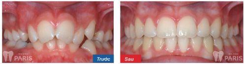 Niềng răng không mắc cài eCligner bí mật nụ cười chuẩn ❛SAO❜ 6