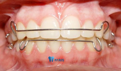 4 điều về hàm duy trì sau khi niềng răng mà bạn cần giải đáp 2