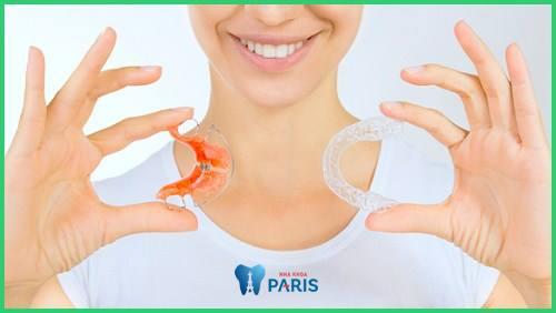 4 điều về hàm duy trì sau khi niềng răng mà bạn cần giải đáp 1