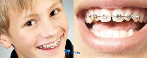 niềng răng không cần nhổ8
