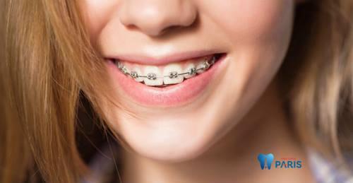 Niềng răng có làm mặt dài ra hay không? [BS Tư Vấn] 2