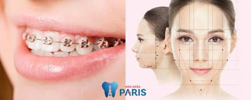 Niềng răng có làm mặt dài ra hay không? [BS Tư Vấn] 3