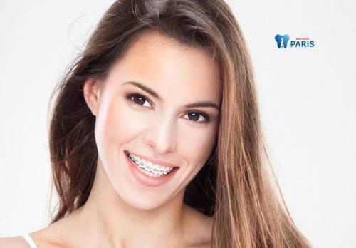 Niềng răng có hết hô không? Chi phí niềng răng bao nhiêu chuẩn nhất 2