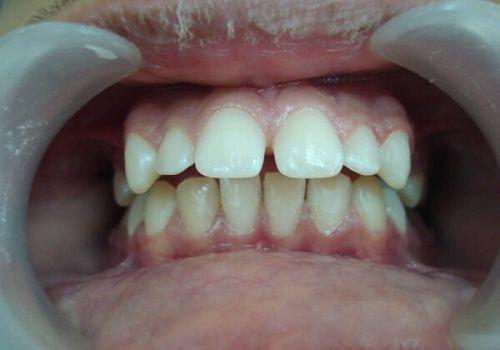 Mẹo chữa răng vẩu tại nhà liệu có đem lại hiệu quả như bạn vẫn nghĩ? 3