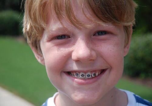Mẹo chữa răng vẩu tại nhà liệu có đem lại hiệu quả như bạn vẫn nghĩ? 2