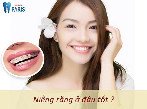 Niềng răng ở đâu tốt tại Hà Nội? - Chuyên Gia Tư Vấn 1