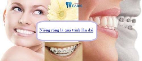 Niềng răng ban đêm - Những chú ý từ chuyên gia không thể bỏ qua 2
