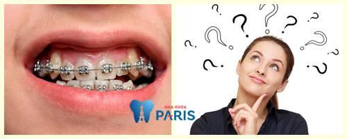 Niềng răng ban đêm - Những chú ý từ chuyên gia không thể bỏ qua 4