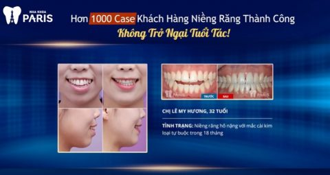 Khách hàng Lê My Hương, 32 tuổi sau khi niềng răng tại Nha khoa Paris.