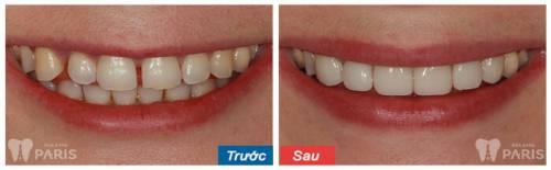 Tại sao răng bị thưa & những cách khắc phục hiệu quả tối ưu nhất 1