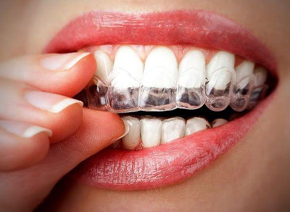"""Chỉnh nha không mắc cài - Giải pháp """"Hoàn Hảo"""" để răng đều & đẹp 2"""