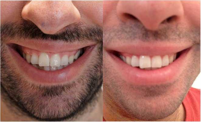 Đàn ông cười hở lợi tướng số ra sao? Cách khắc phục như thế nào? 1