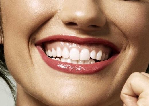 Tư Vấn: Niềng răng chữa cười hở lợi có thật sự hiệu quả? 5