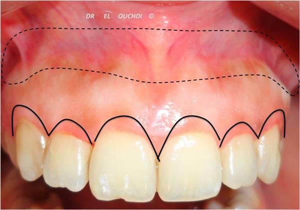 Tư Vấn: Niềng răng chữa cười hở lợi có thật sự hiệu quả? 3