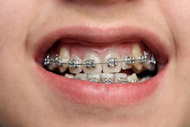 Tư Vấn: Niềng răng chữa cười hở lợi có thật sự hiệu quả? 4