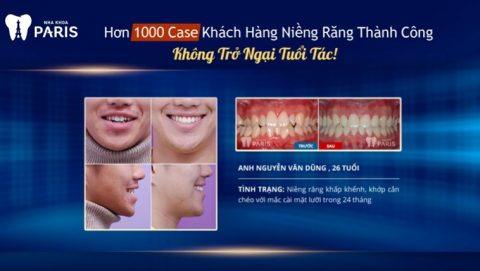 Anh Nguyễn Văn Dũng, 26 tuổi niềng răng tại Nha khoa Paris