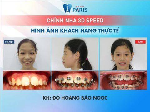 Em Đỗ Hoàng Bảo Ngọc niềng răng 3D Speed tại Nha khoa Paris