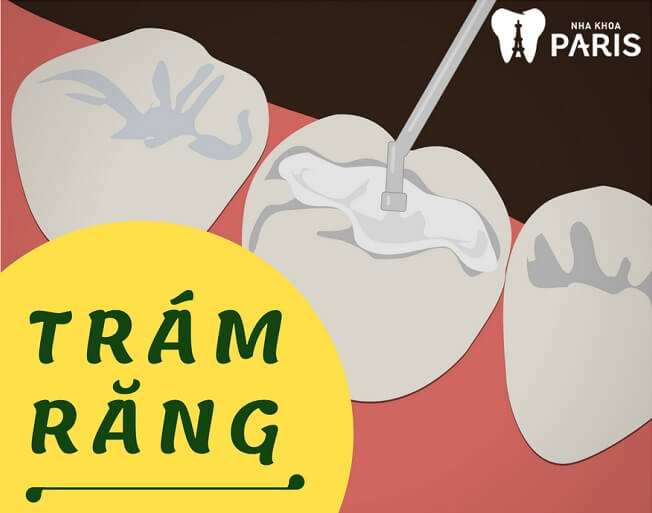 """[ĐỪNG BỎ QUA] TOP 4 Cách làm răng đều đẹp như """"Bắp"""" 1"""