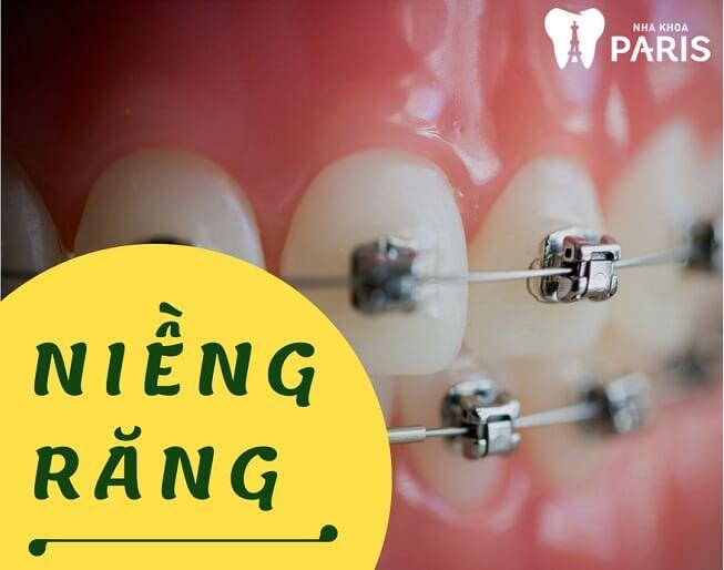 """[ĐỪNG BỎ QUA] TOP 4 Cách làm răng đều đẹp như """"Bắp"""" 4"""