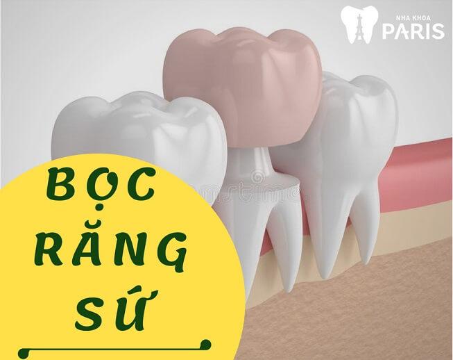 """[ĐỪNG BỎ QUA] TOP 4 Cách làm răng đều đẹp như """"Bắp"""" 2"""