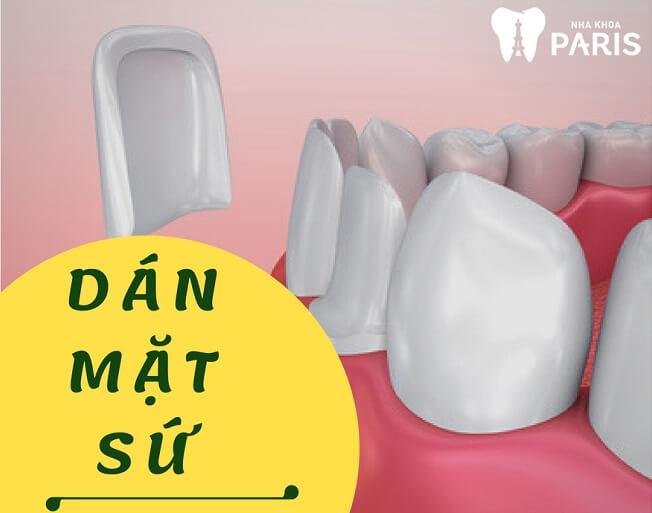 """[ĐỪNG BỎ QUA] TOP 4 Cách làm răng đều đẹp như """"Bắp"""" 3"""