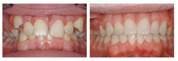 Niềng răng trả góp tại nha khoa Paris có giá bao nhiêu? 4