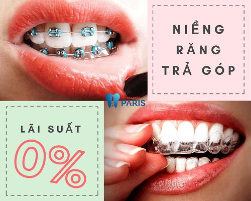Niềng răng trả góp tại nha khoa Paris có giá bao nhiêu? 8