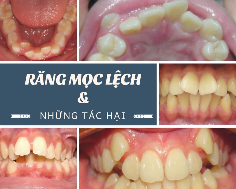 """Răng mọc lệch có thể tạo ra những nguy hại """"Khó Lường"""" như thế nào? 3"""