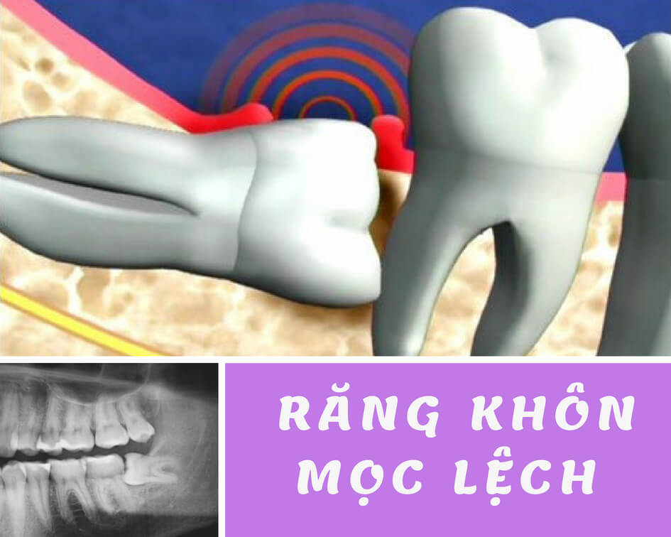 """Răng mọc lệch có thể tạo ra những nguy hại """"Khó Lường"""" như thế nào? 2"""