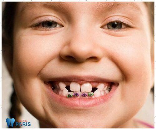 Niềng răng trẻ em - Đánh giá về cơ sở nha khoa uy tín và tốt nhất 2