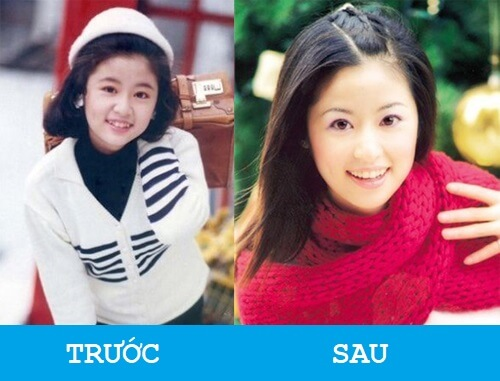 """Niềng răng khểnh - Sao Việt """"LỘT XÁC"""" với nụ cười hoàn hảo 8"""