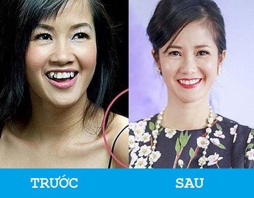 """Niềng răng khểnh - Sao Việt """"LỘT XÁC"""" với nụ cười hoàn hảo 7"""