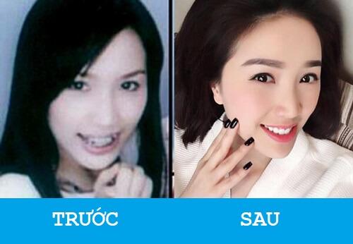 """Niềng răng khểnh - Sao Việt """"LỘT XÁC"""" với nụ cười hoàn hảo 5"""