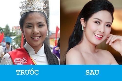 """Niềng răng khểnh - Sao Việt """"LỘT XÁC"""" với nụ cười hoàn hảo 3"""