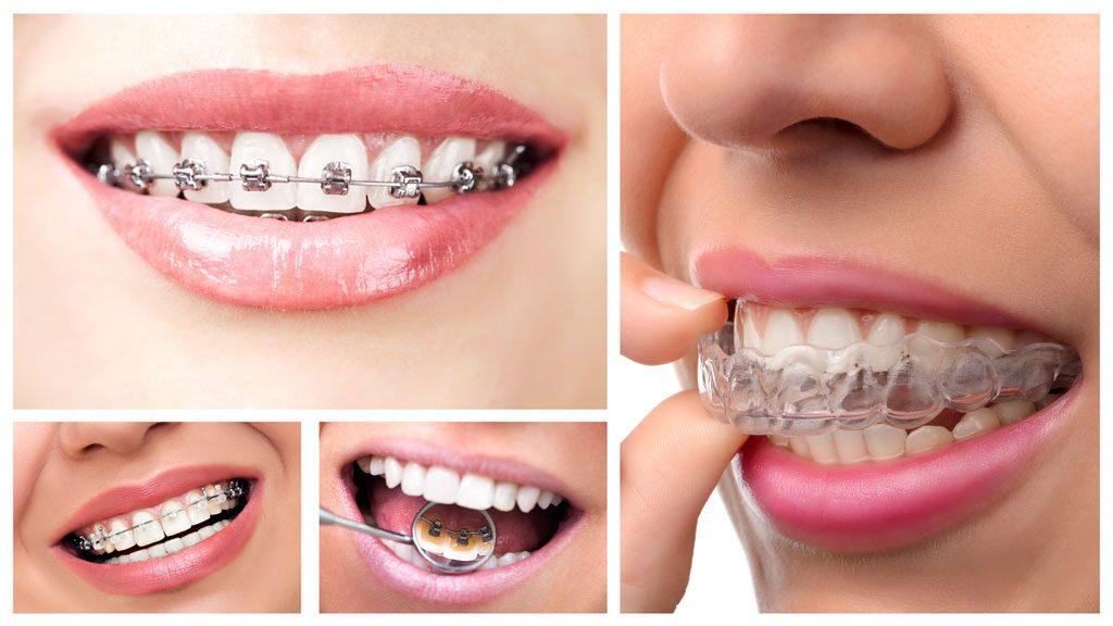 Chi phí không dựa vào thời gian niềng mà dựa vào các loại niềng răng