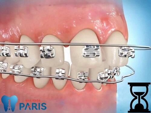 Chữa răng hô bằng công nghệ 3D Speed: Rút ngắn thời gian 3 - 6 tháng 5